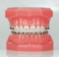 Рентген-аппараты Swidella в помощь врачам-ортодонтам
